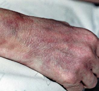 結節性多発動脈炎の症状と治療
